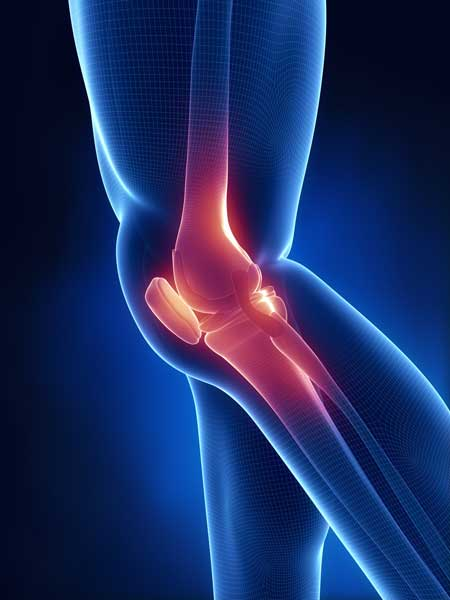 Knee x ray blue anatomy bridgeview physiotherapy sports clinic knee x ray blue anatomy ccuart Gallery